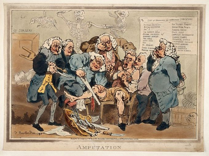 Amputation. Thomas Rowlandson, 1793.